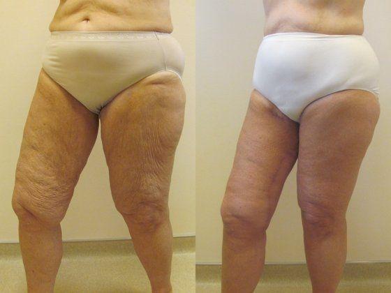 thigh_side.jpg
