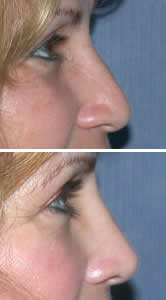 Nose Job (Rhinoplasty) Tampa Bay