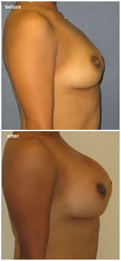 before and after photos of breast augmentation surgery by Dr Perez in Tampa