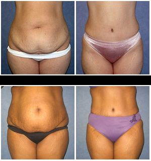 Tummy Tuck by Jaime Perez MD