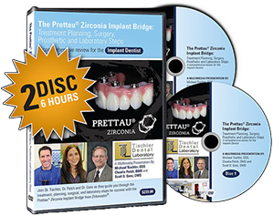 Prettau Bridge DVDs