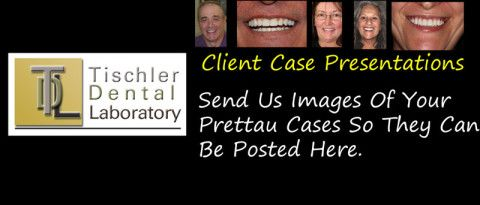Case presentations from clients of Tischler Dental Laboratory.