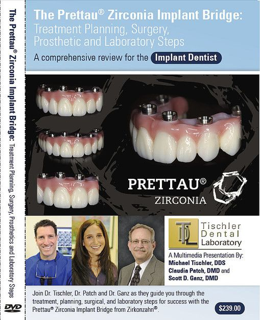 An advertisement for the Prettau® Zirconia bridge.