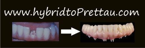 Photos of a conversion from a hybrid bridge to a Prettau® bridge.