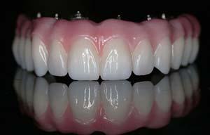 Prettau dental implant bridge