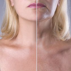 Before and after images of a neck lift patient.