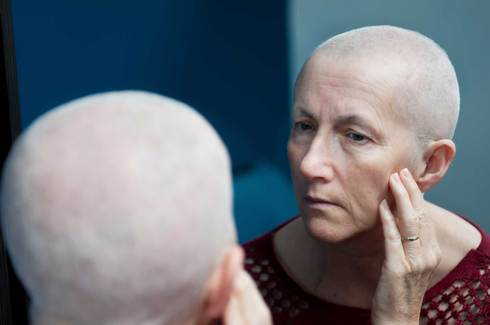 A woman looking at her hair loss in the mirror