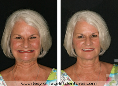 Elderly woman with Fountain of Youth Dentures