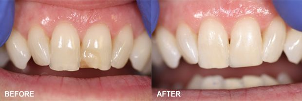 Before and after images of dental bonding patient