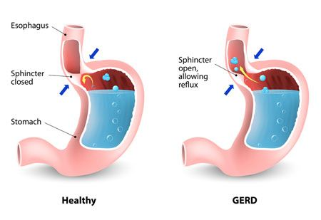 Image of healthy stomach versus GERD stomach