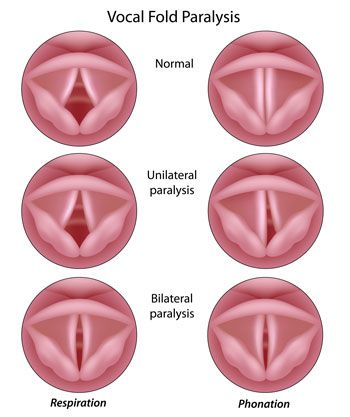 Image of vocal fold paralysis