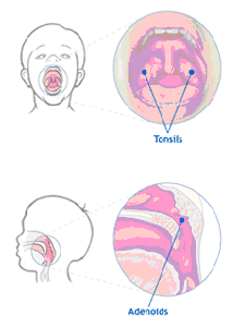 Diagram of Tonsils
