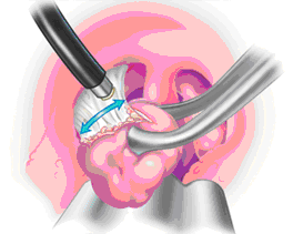 Diagram of tonsils being removed.