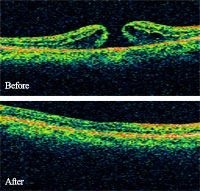 before and after macular holes
