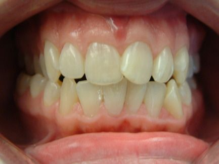 Crooked teeth before treatment with orthodontics.