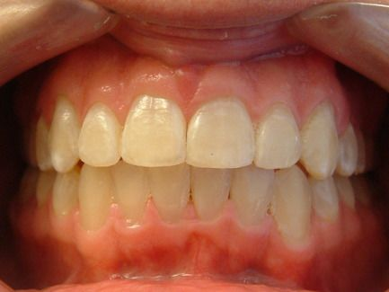 A close-up view of teeth straightened with traditional braces.