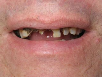 A patient before dental crown treatment