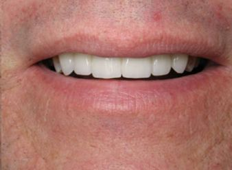 A patient's smile after dental crown treatment