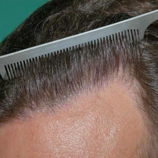 Patient before hair loss retreatment