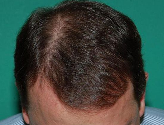 Man's scalp after hair restoration