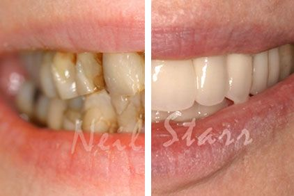 teeth before and after crowns