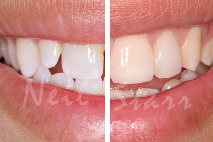 Side-by-side image showing dental bonding results