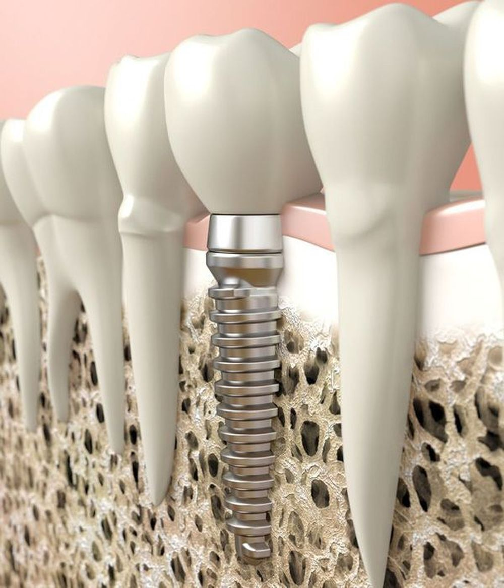 An illustrated example of a dental implant