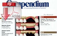 Implant Placement Article