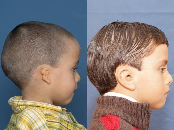 before and after inner ear and microtia surgery