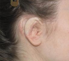 Rib Cartilage Ear Reconstruction