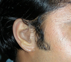 Man wearing silicone prosthetic ear