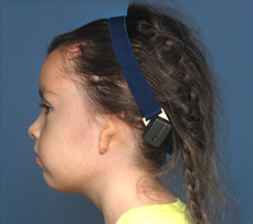 Young microtia patient wearing a bone anchored hearing aid