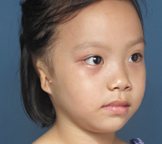 Young microtia patient