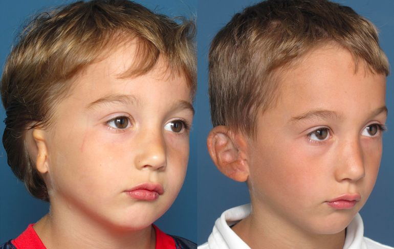 Microtia patient before and after surgery