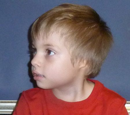 Young boy with microtia