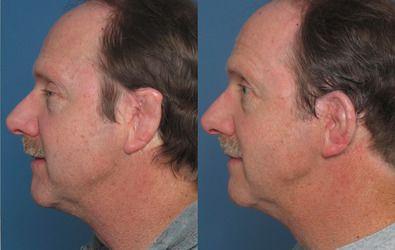 Man's profile showing ear reconstruction