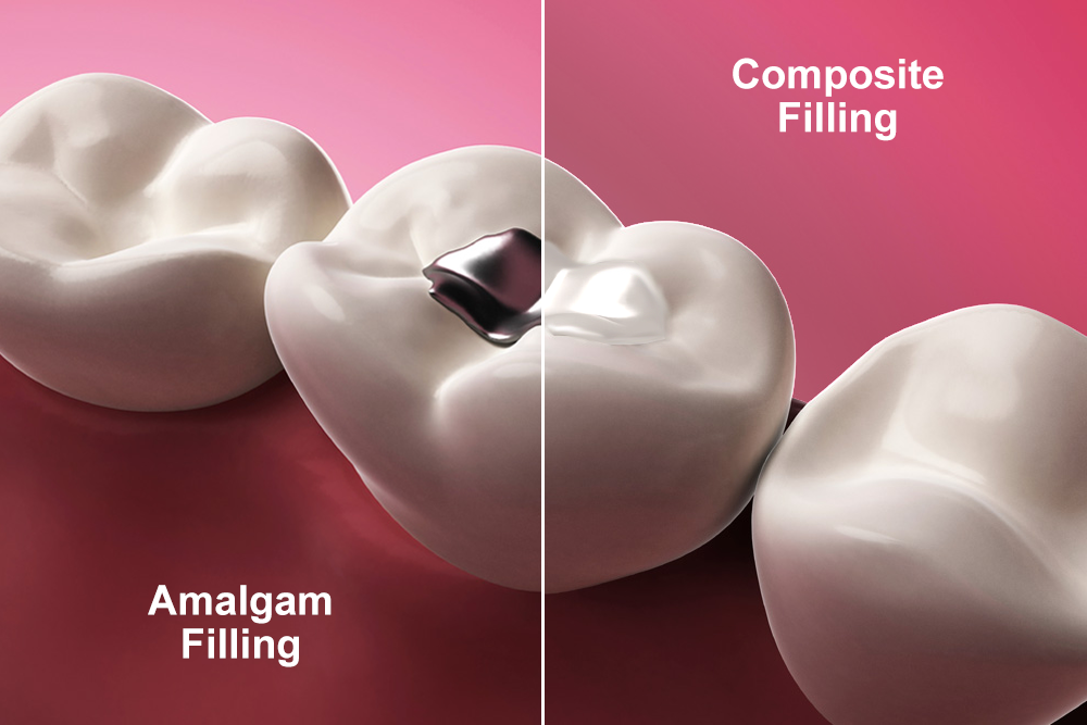 Illustration of an amalgam filling next to a tooth-colored filling