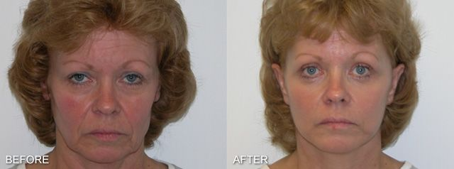 Before and after images of a facelift patient.