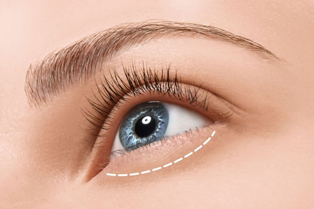 An outline of the lower eyelid area.