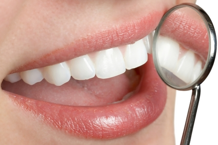 Woman's white, straight teeth reflected in dental examination mirror