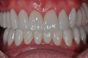 porcelain crowns after closeup of teeth