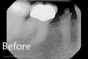2 hour dental implant before xray