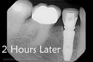 2 hour dental implant after xray