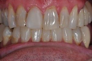 porcelain crowns before closeup of teeth
