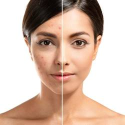 Photo of a woman before and after acne scar removal