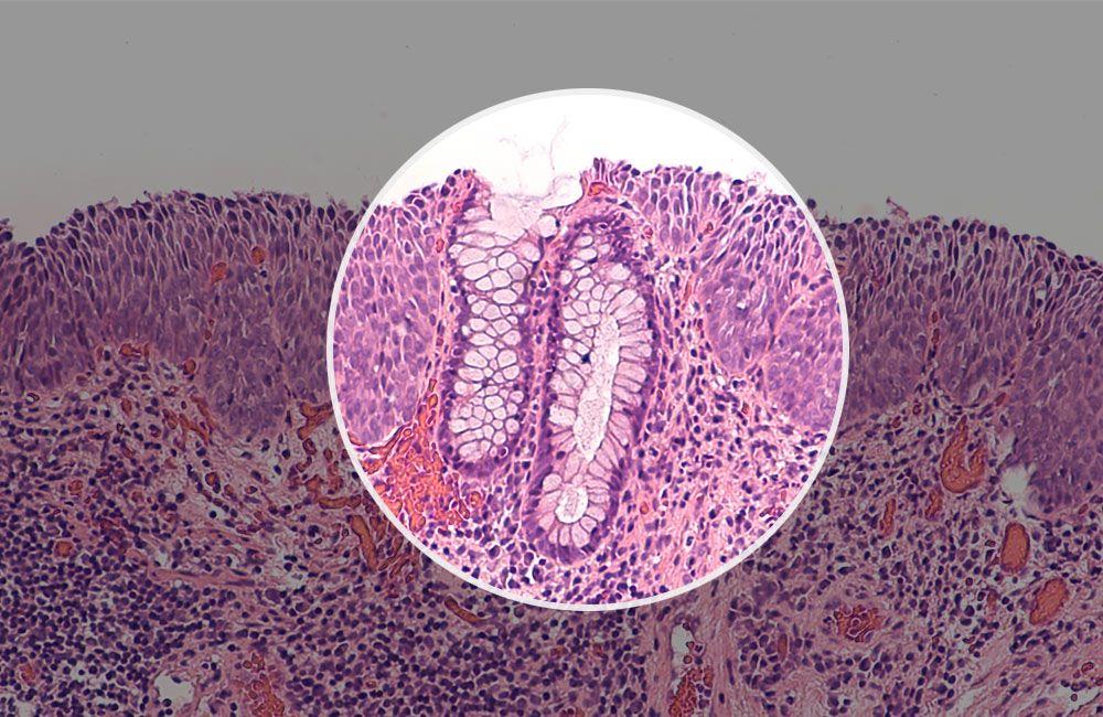 Precancerous cells