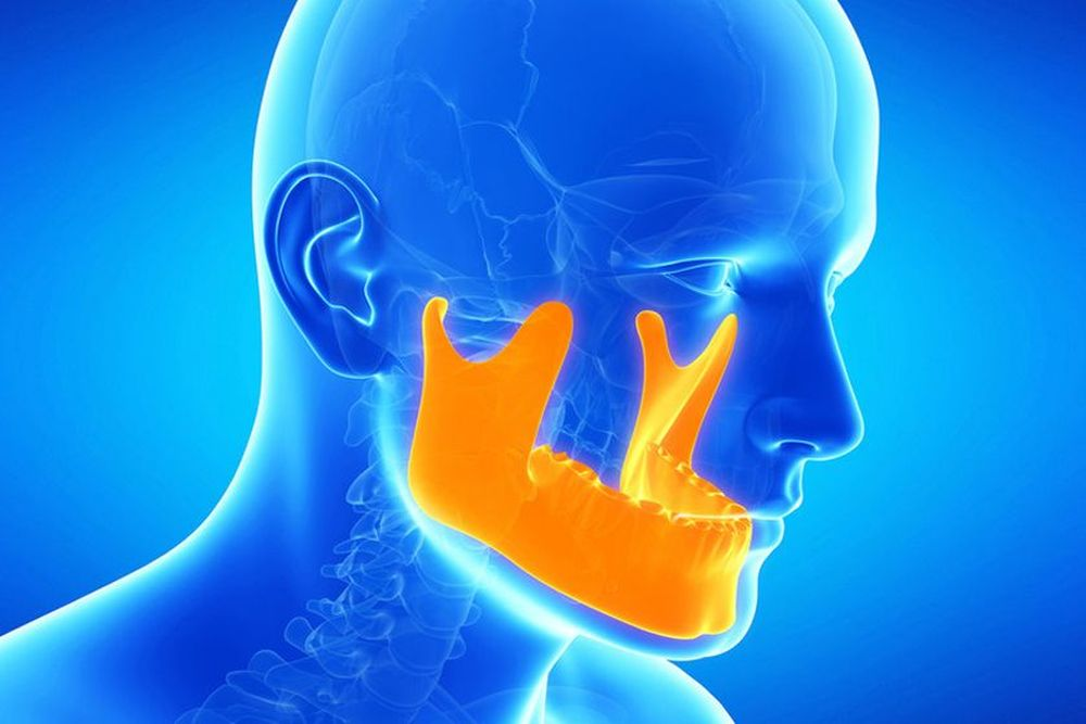 An illustrated example of how TMJ affects a person's jaw