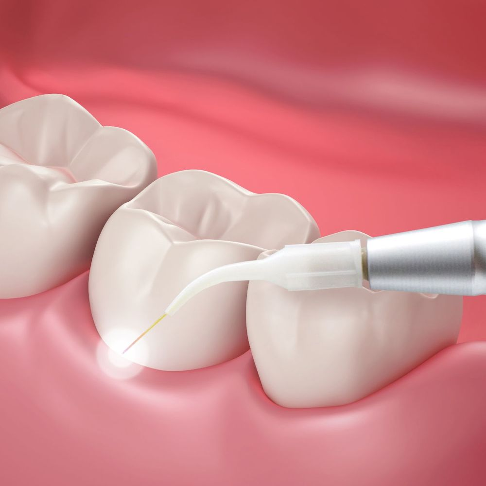 Photo of laser periodontal treatment