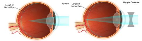 Two images of the eye showing myopia.