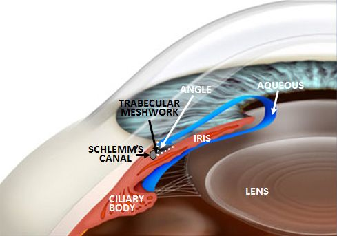 A diagram that shows how open angle glaucoma occurs.